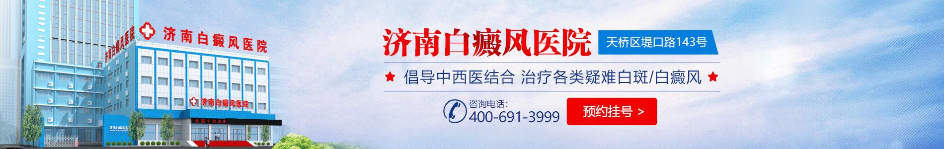 濟南白癜風醫院